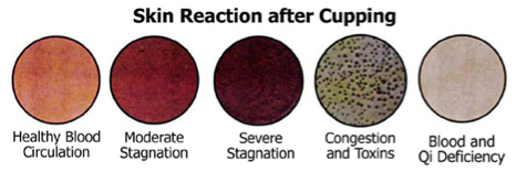 Cupping skin reactions